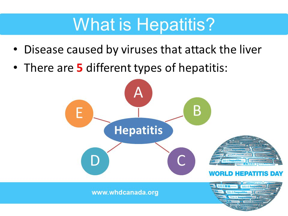 the different types of the hepatitis disease Hepatitis, a general term referring to inflammation of the liver, may result from various causes, both infectious (ie, viral, bacterial, fungal, and parasitic organisms) and noninfectious (eg, alcohol, drugs, autoimmune diseases, and metabolic diseases) this article focuses on viral.