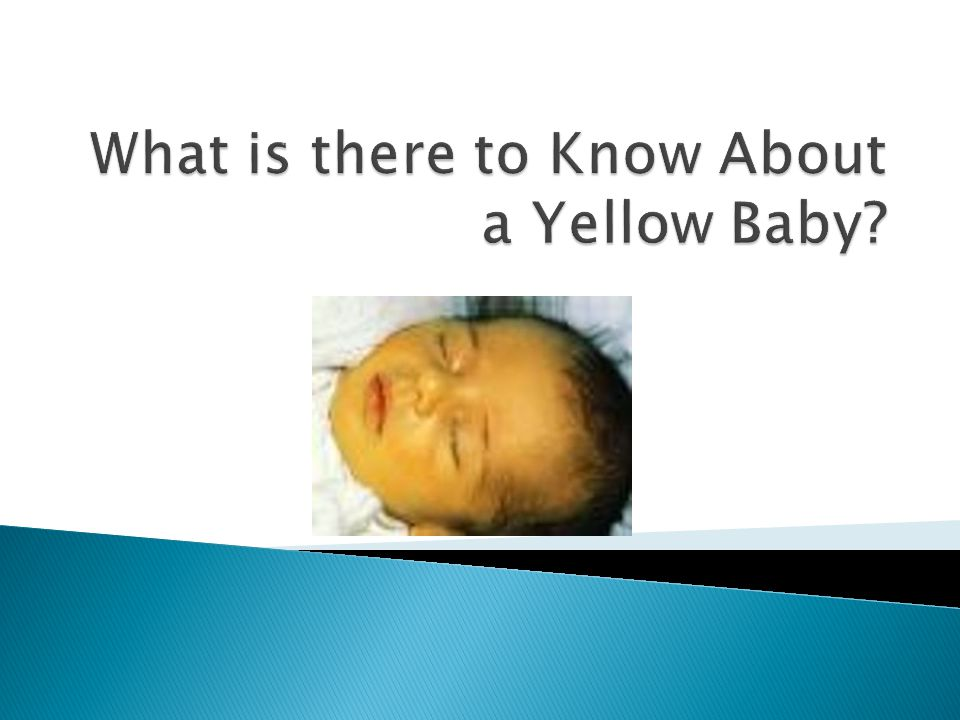 What is there to Know About a Yellow Baby