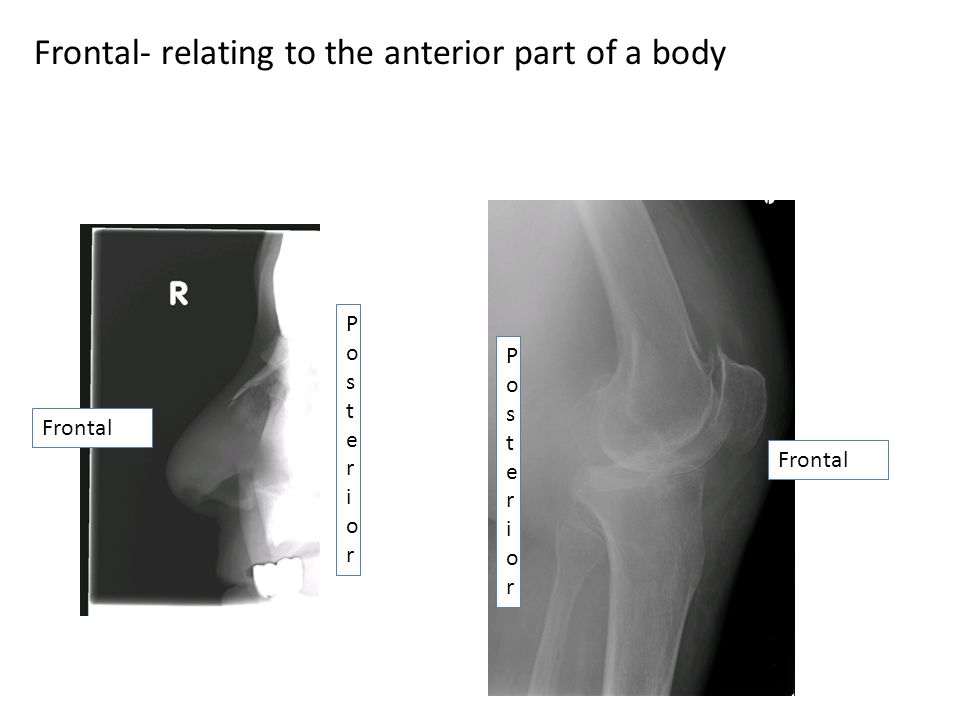 Frontal- relating to the anterior part of a body