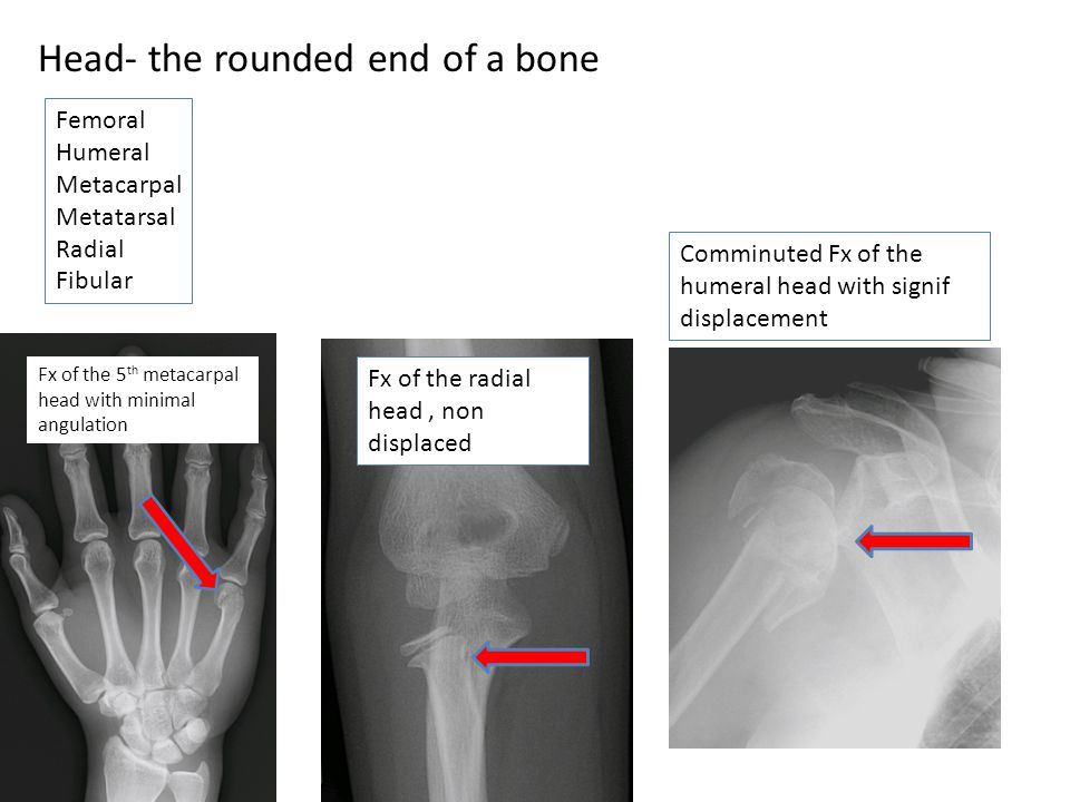 Head- the rounded end of a bone