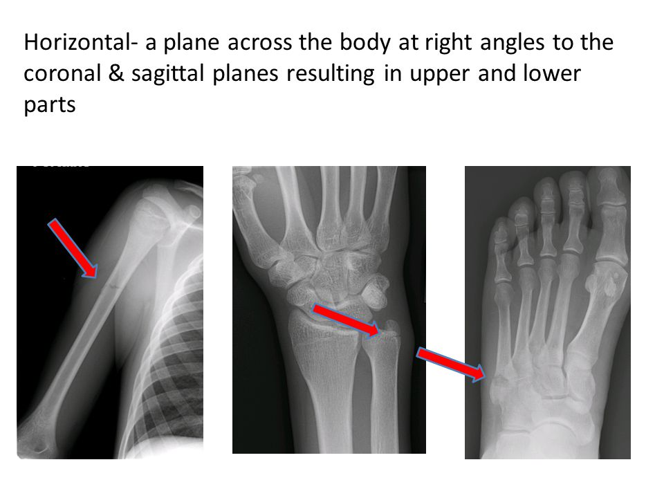 Horizontal- a plane across the body at right angles to the coronal & sagittal planes resulting in upper and lower parts