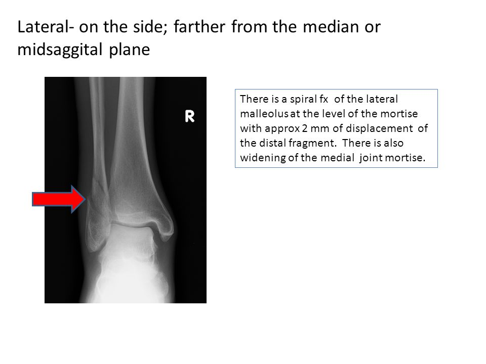 Lateral- on the side; farther from the median or midsaggital plane