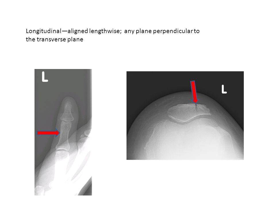 Longitudinal—aligned lengthwise; any plane perpendicular to the transverse plane