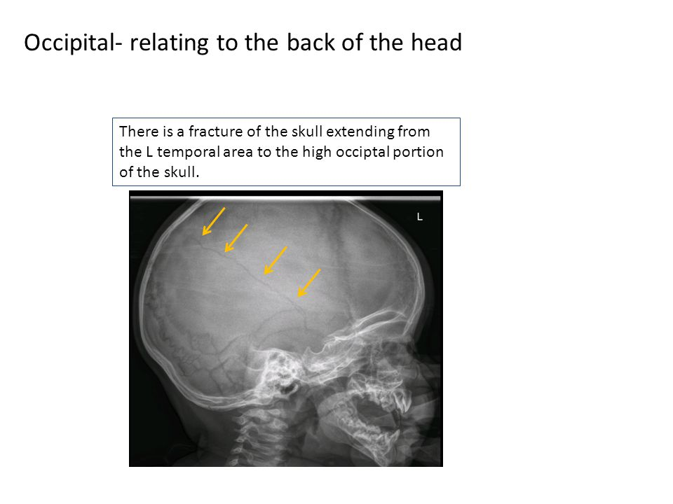 Occipital- relating to the back of the head