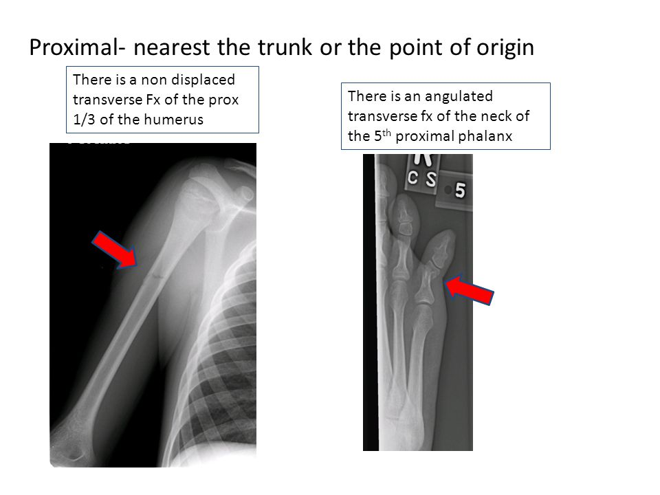 Proximal- nearest the trunk or the point of origin