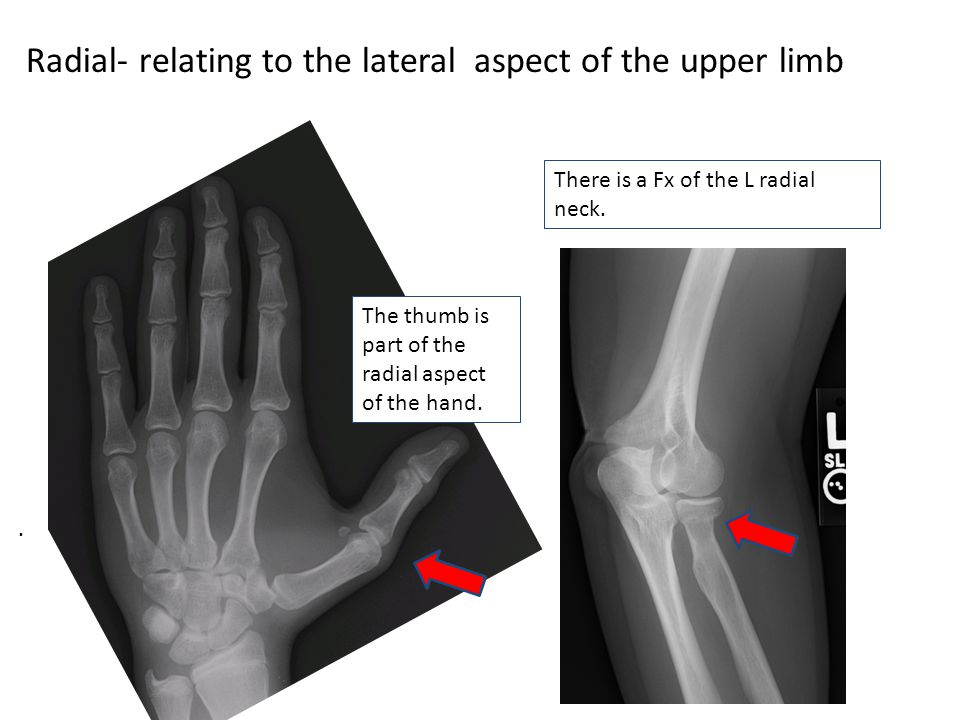 Radial- relating to the lateral aspect of the upper limb