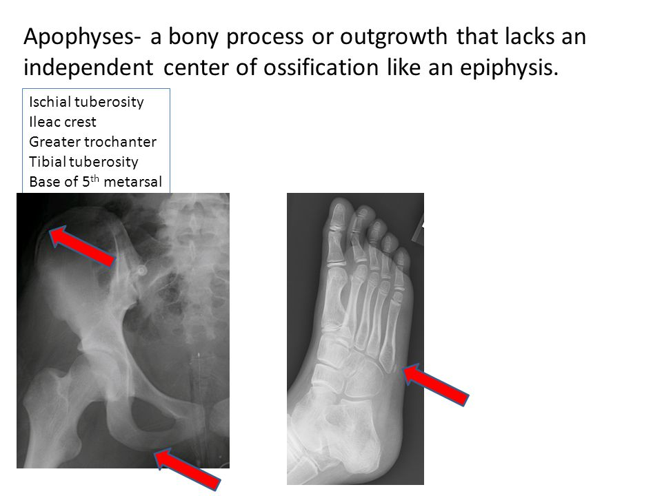Apophyses- a bony process or outgrowth that lacks an independent center of ossification like an epiphysis.