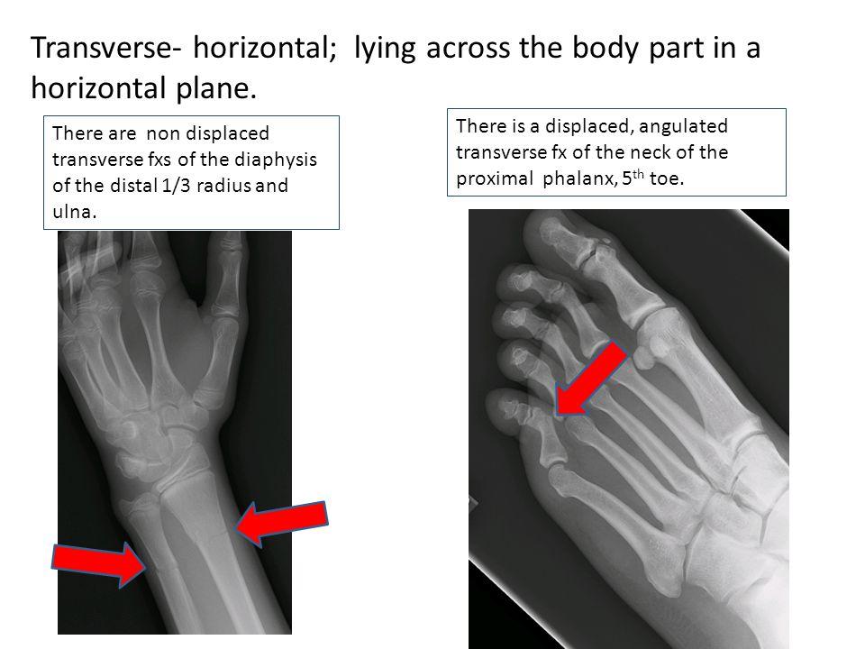 Transverse- horizontal; lying across the body part in a horizontal plane.