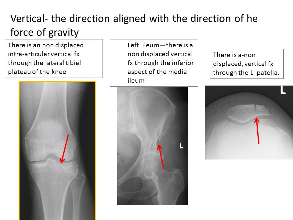 Vertical- the direction aligned with the direction of he force of gravity