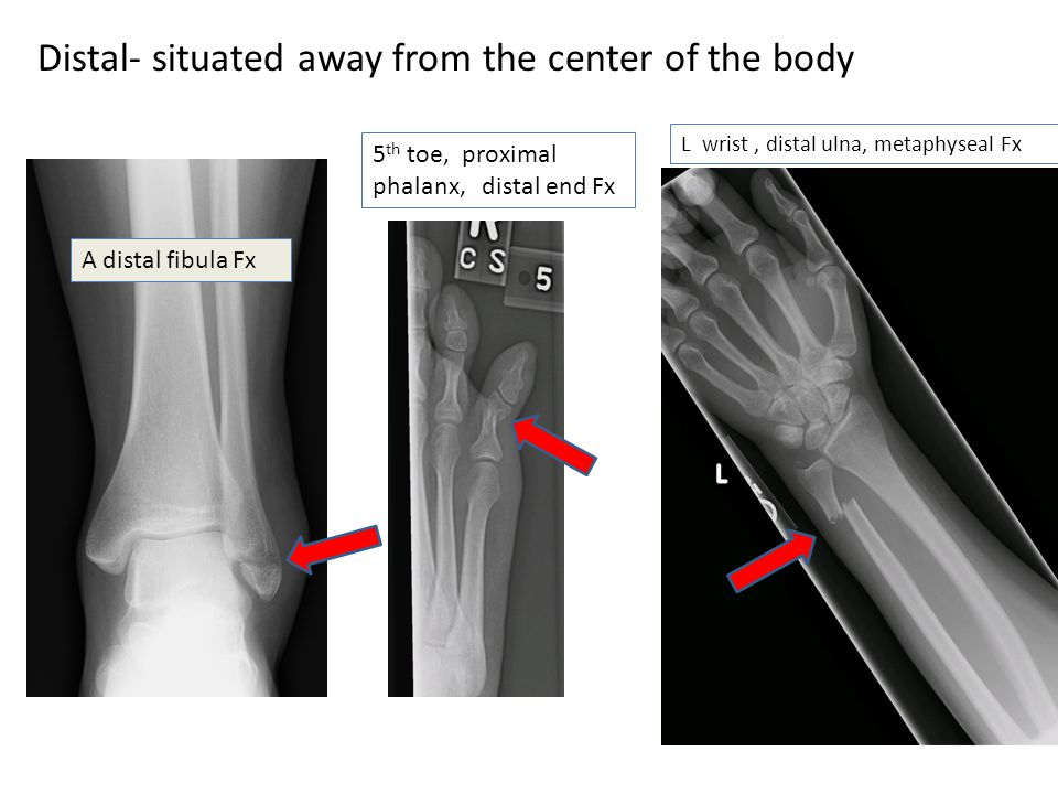 Distal- situated away from the center of the body