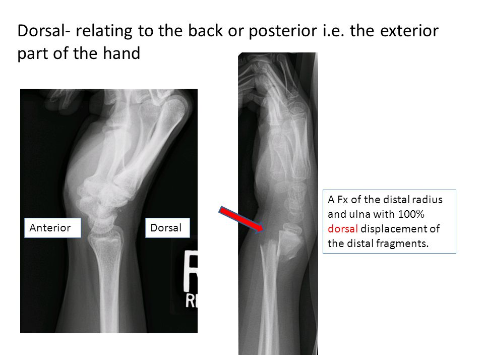 Dorsal- relating to the back or posterior i. e