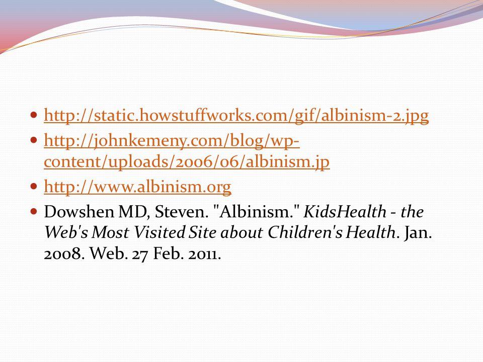 http://static.howstuffworks.com/gif/albinism-2.jpg http://johnkemeny.com/blog/wp-content/uploads/2006/06/albinism.jp.