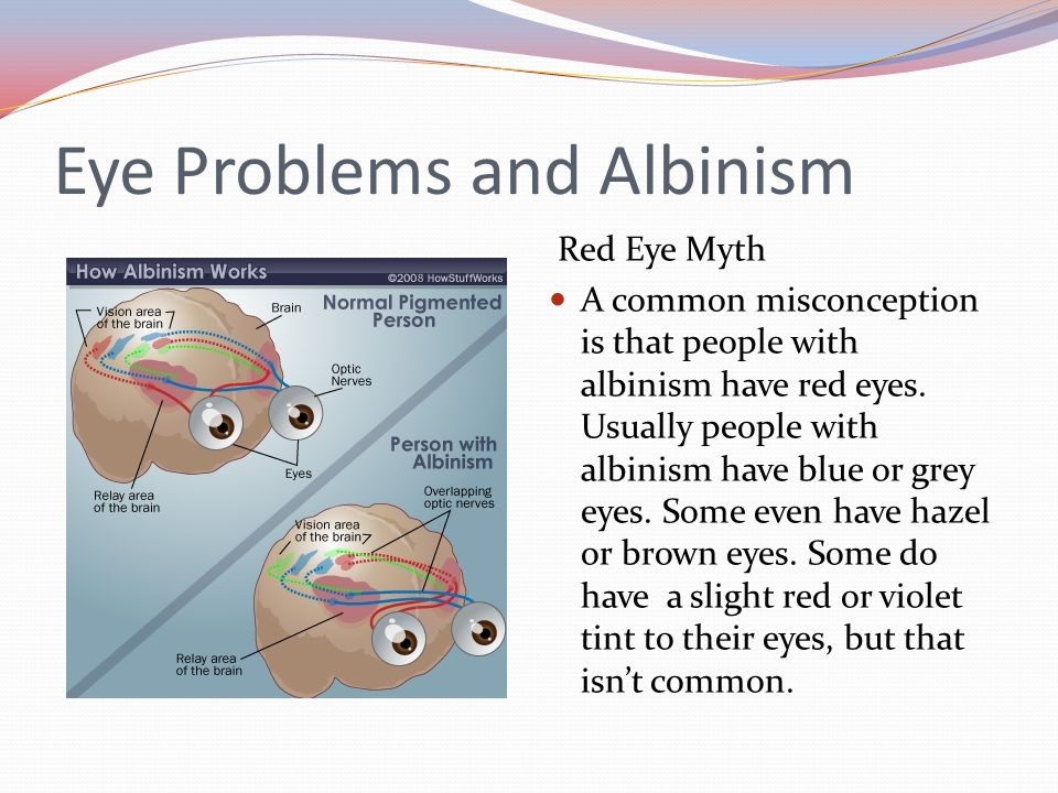 Eye Problems and Albinism