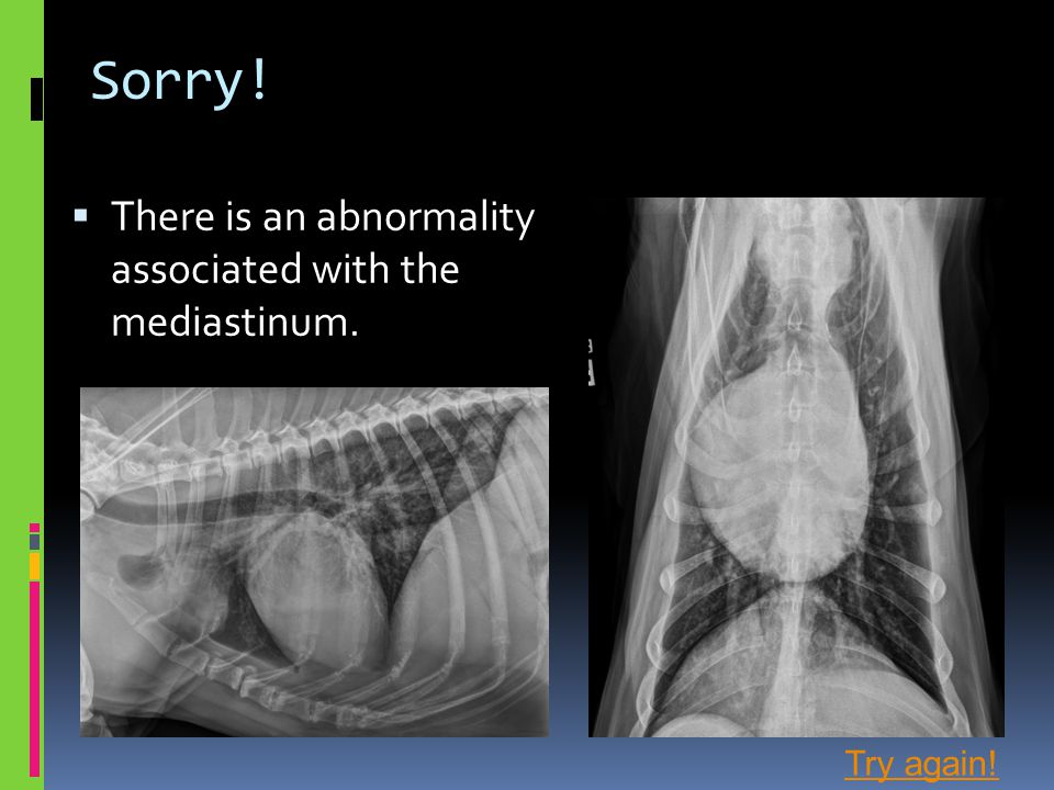 Sorry! There is an abnormality associated with the mediastinum.