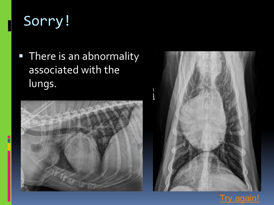 Sorry! There is an abnormality associated with the lungs. Try again!
