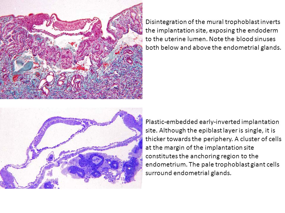 Disintegration of the mural trophoblast inverts the implantation site, exposing the endoderm to the uterine lumen. Note the blood sinuses both below and above the endometrial glands.