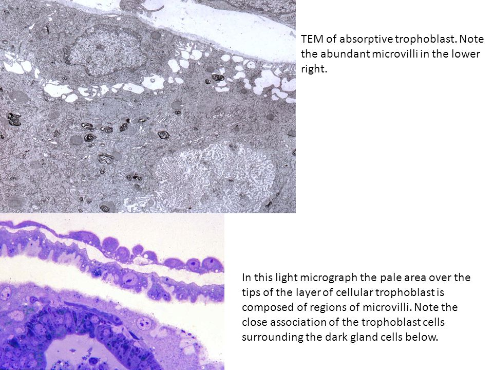 TEM of absorptive trophoblast