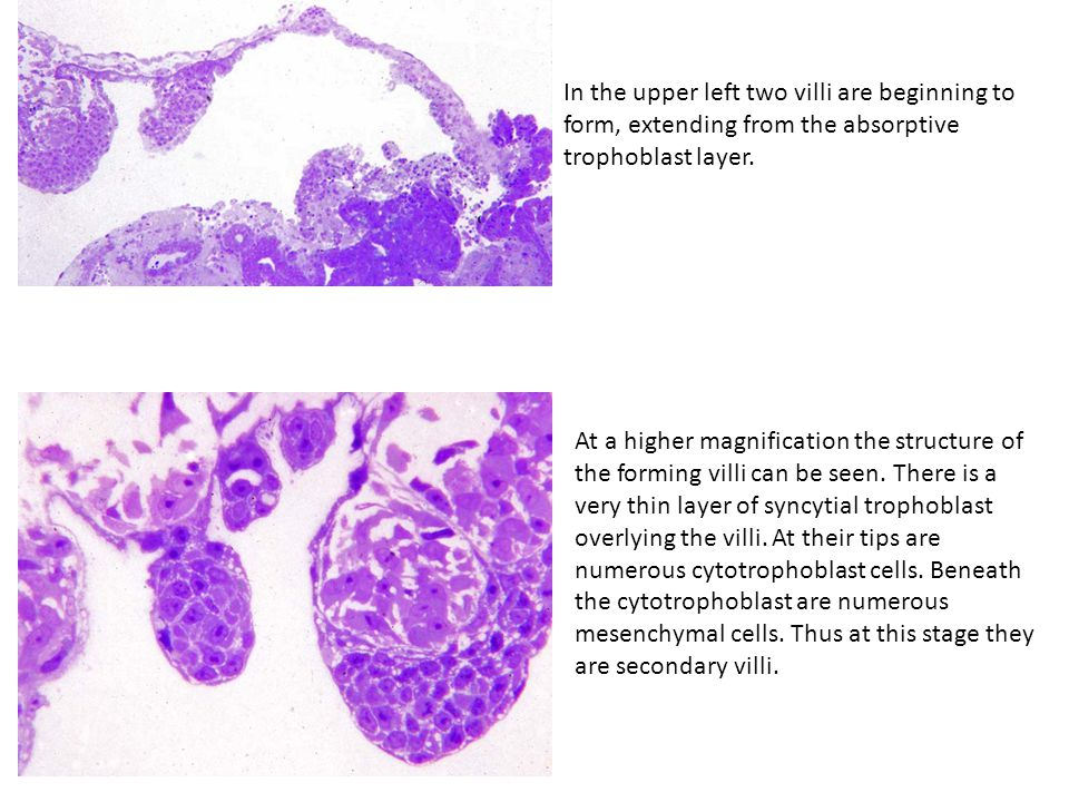 In the upper left two villi are beginning to form, extending from the absorptive trophoblast layer.