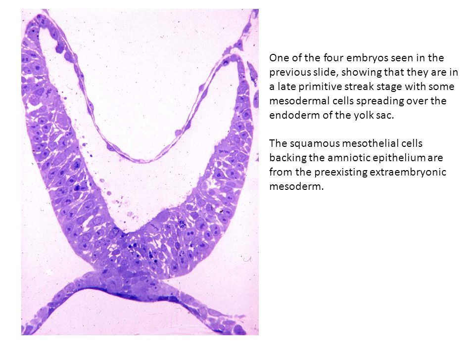 One of the four embryos seen in the previous slide, showing that they are in a late primitive streak stage with some mesodermal cells spreading over the endoderm of the yolk sac.