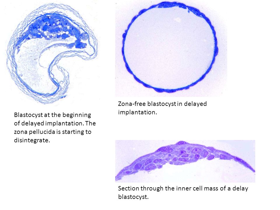 Zona-free blastocyst in delayed implantation.