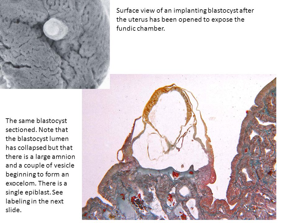 Surface view of an implanting blastocyst after the uterus has been opened to expose the fundic chamber.