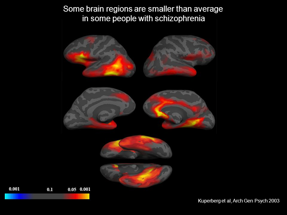 Some brain regions are smaller than average