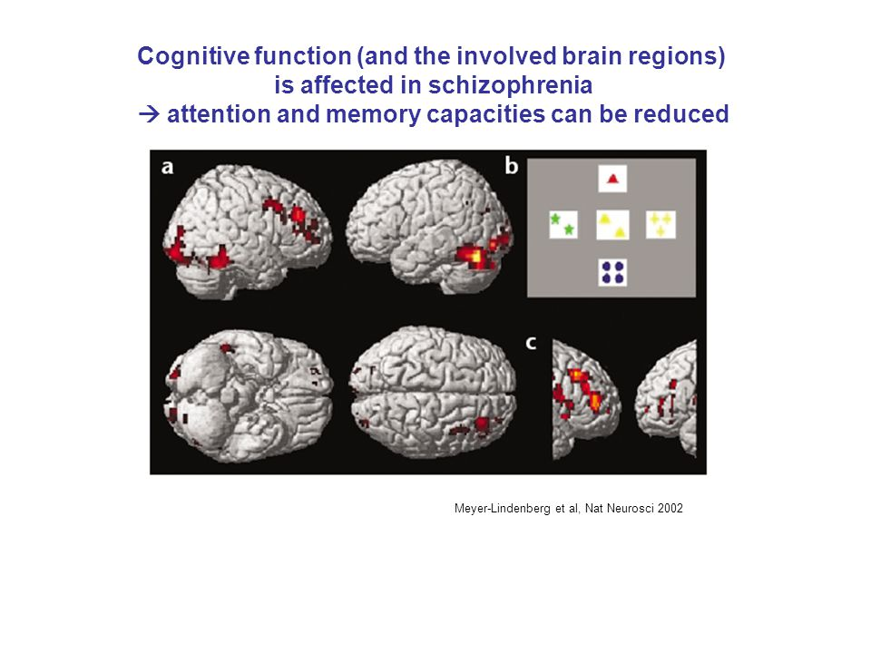 Cognitive function (and the involved brain regions)