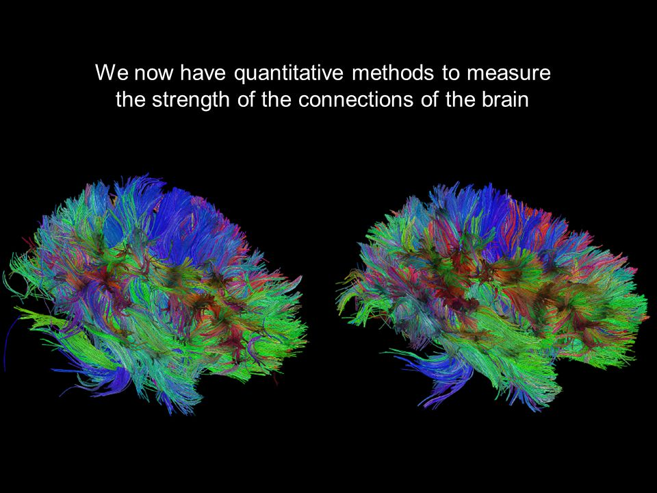 We now have quantitative methods to measure the strength of the connections of the brain