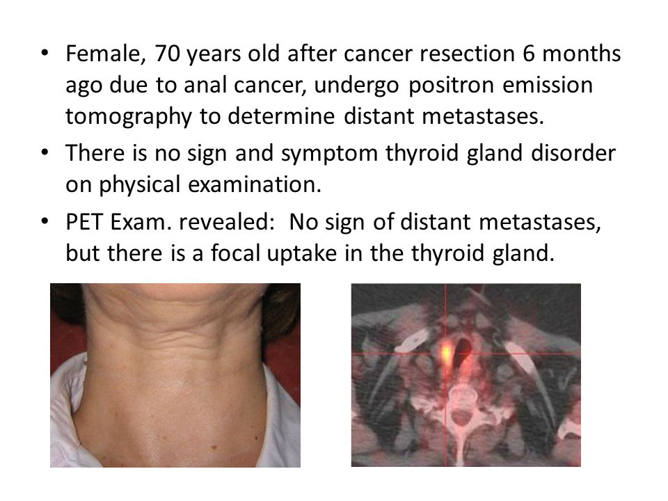 Female, 70 years old after cancer resection 6 months ago due to anal cancer, undergo positron emission tomography to determine distant metastases.
