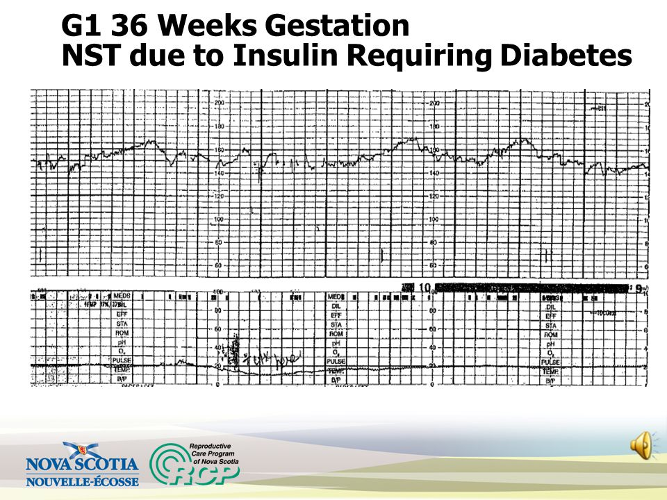 G1 36 Weeks Gestation NST due to Insulin Requiring Diabetes