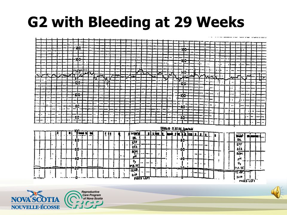 G2 with Bleeding at 29 Weeks