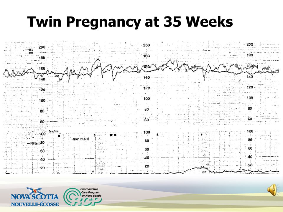 Twin Pregnancy at 35 Weeks