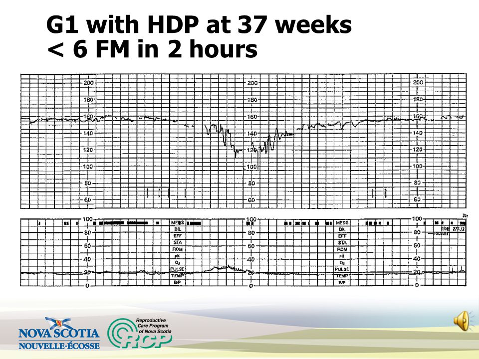 G1 with HDP at 37 weeks < 6 FM in 2 hours