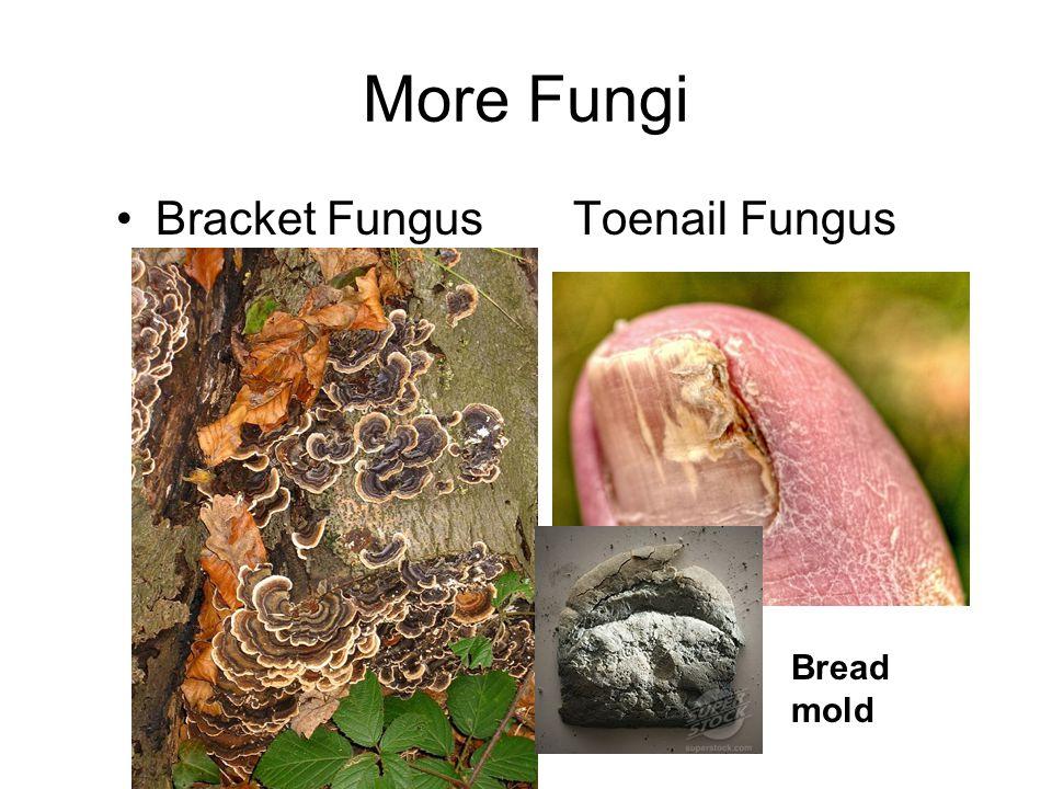 More Fungi Bracket Fungus Toenail Fungus Bread mold