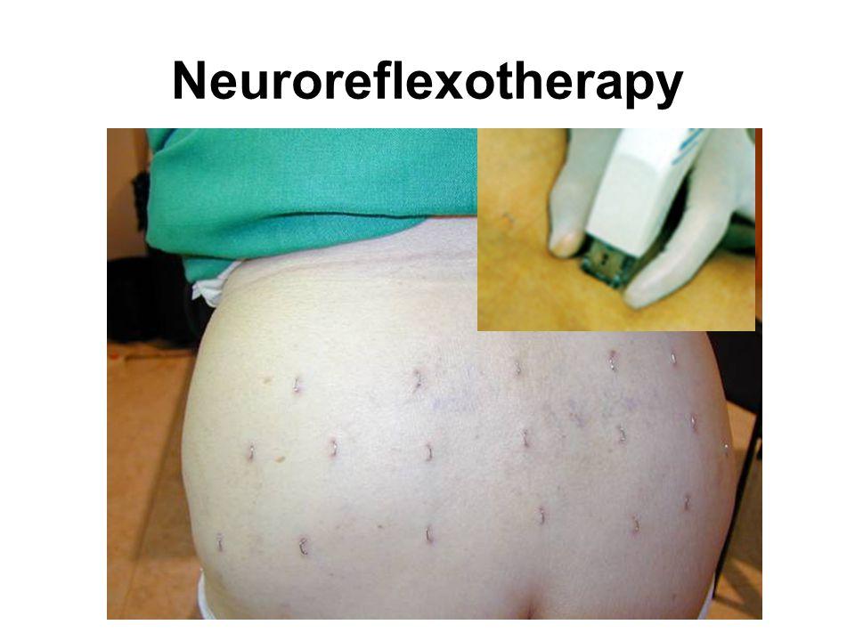 Neuroreflexotherapy