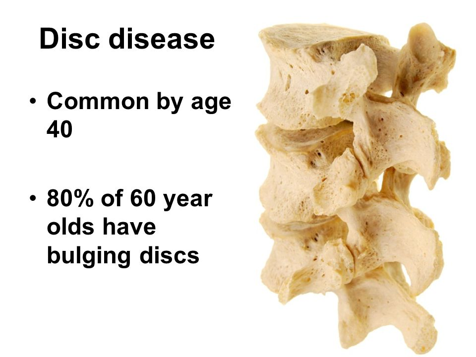 Disc disease Common by age 40 80% of 60 year olds have bulging discs