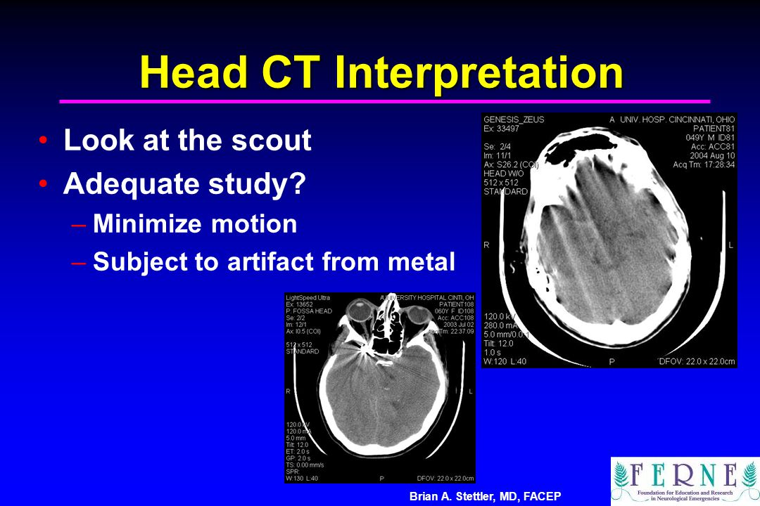 Head CT Interpretation