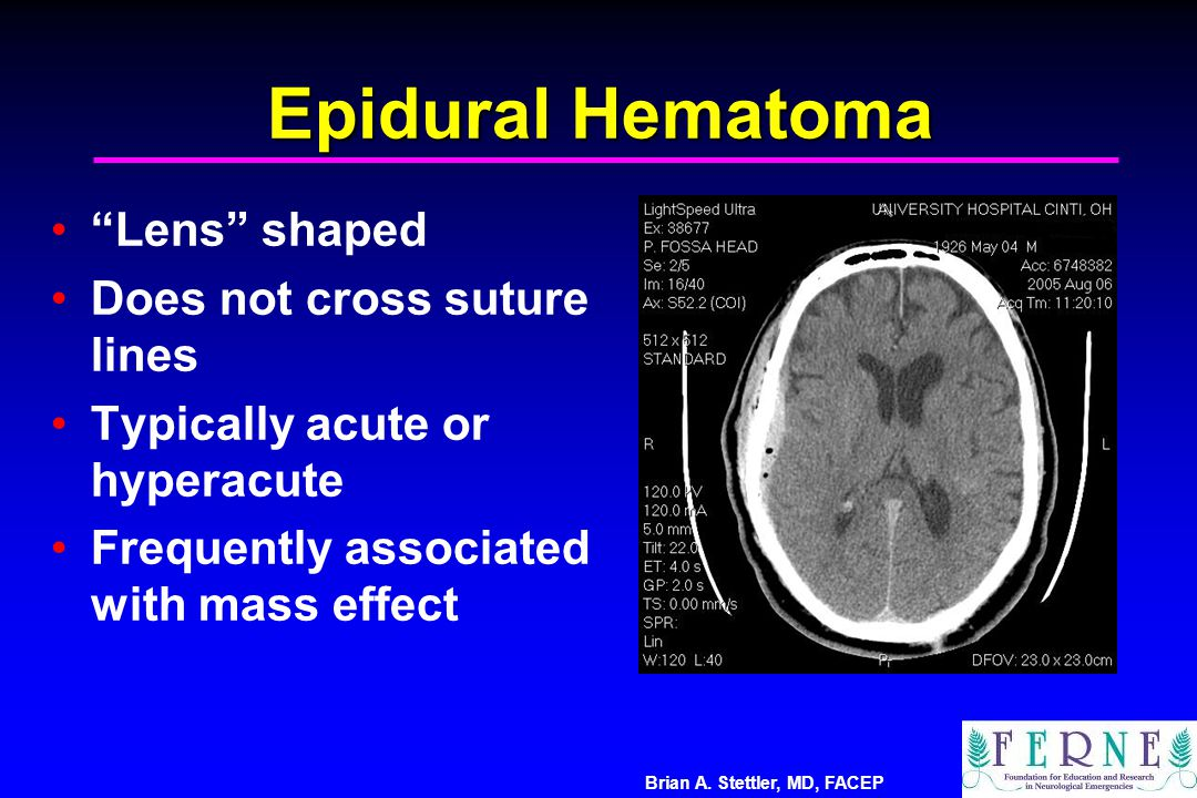 Epidural Hematoma Lens shaped Does not cross suture lines
