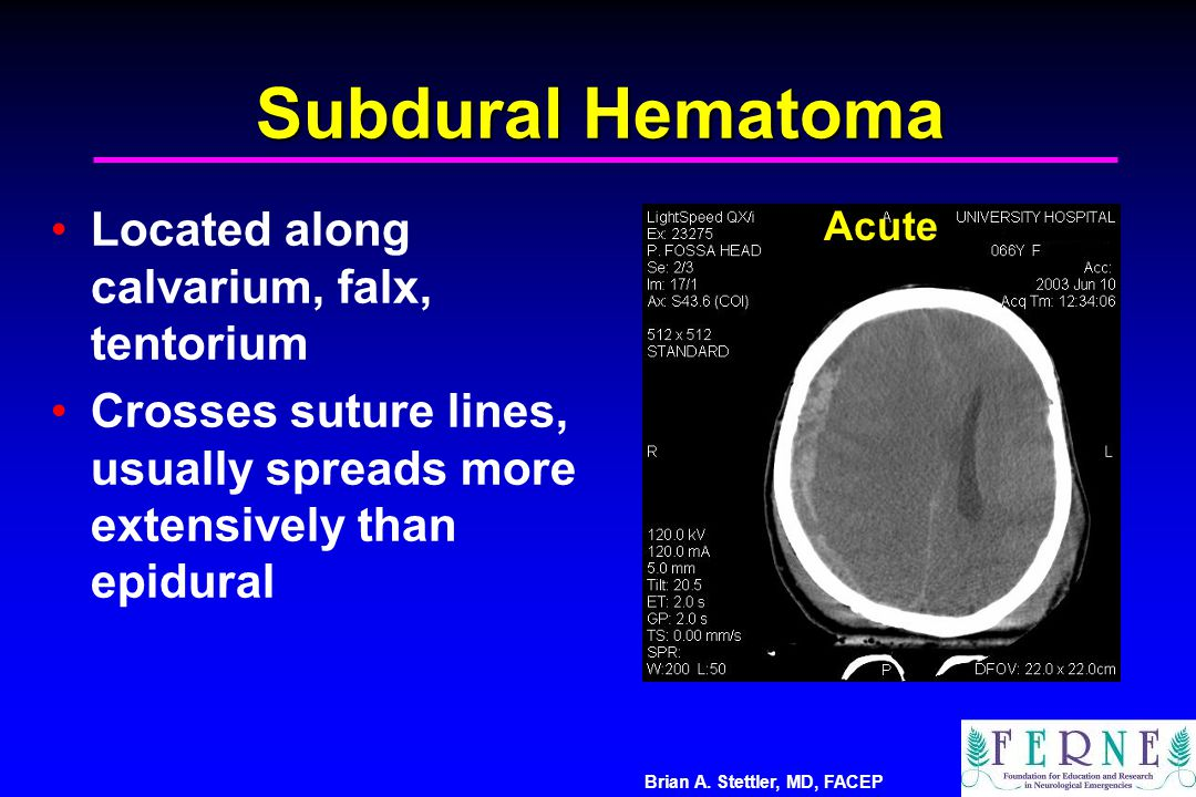 Subdural Hematoma Located along calvarium, falx, tentorium