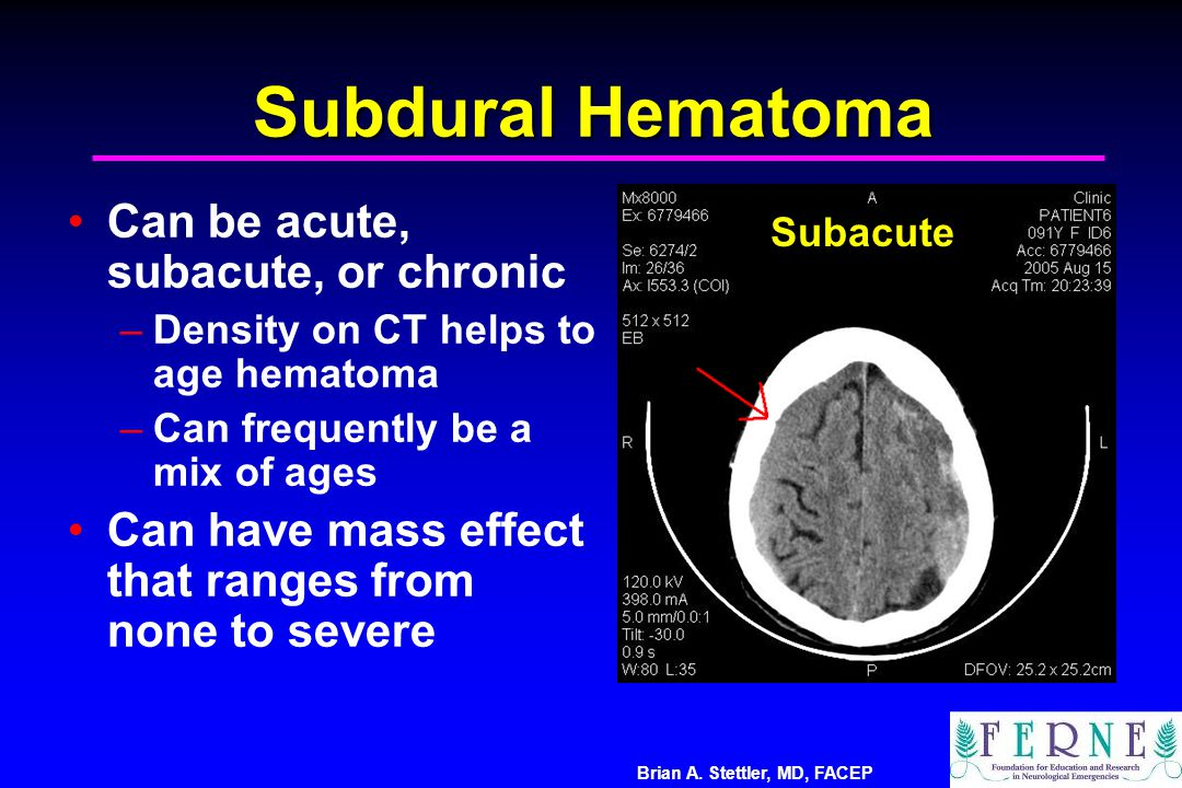 Subdural Hematoma Can be acute, subacute, or chronic