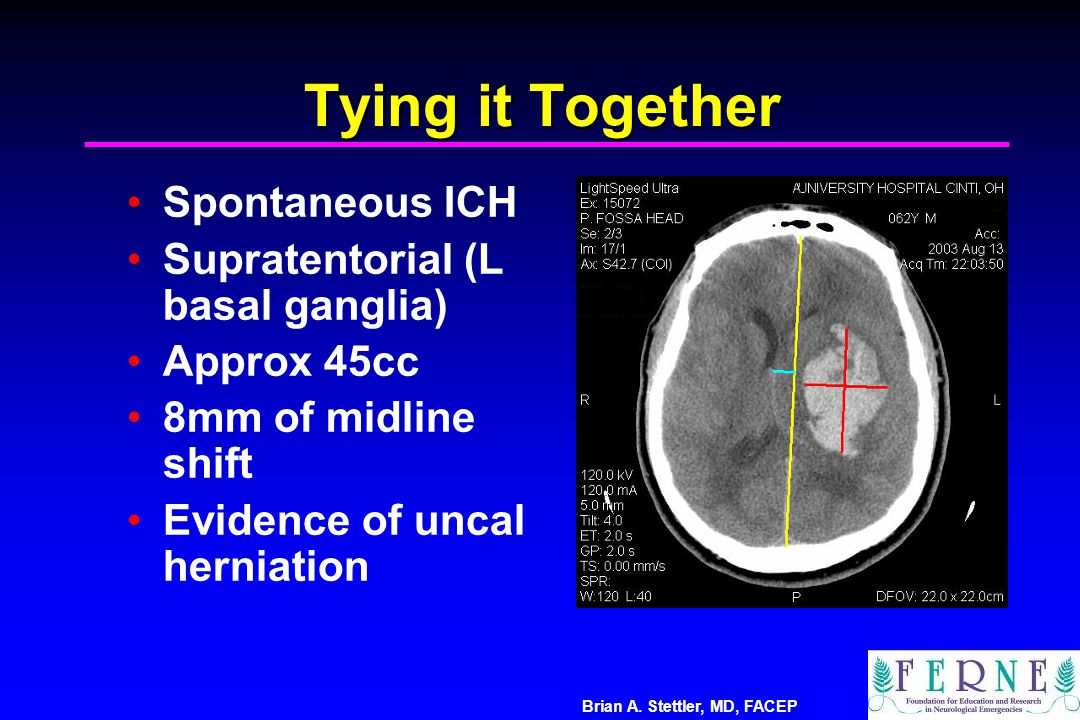 Tying it Together Spontaneous ICH Supratentorial (L basal ganglia)