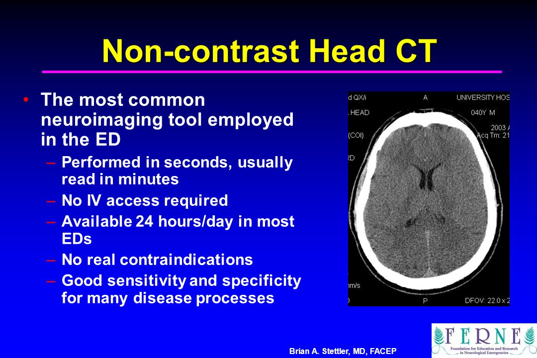 Non-contrast Head CT The most common neuroimaging tool employed in the ED. Performed in seconds, usually read in minutes.