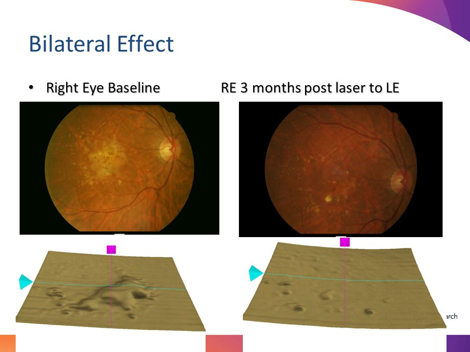 Bilateral Effect Right Eye Baseline RE 3 months post laser to LE