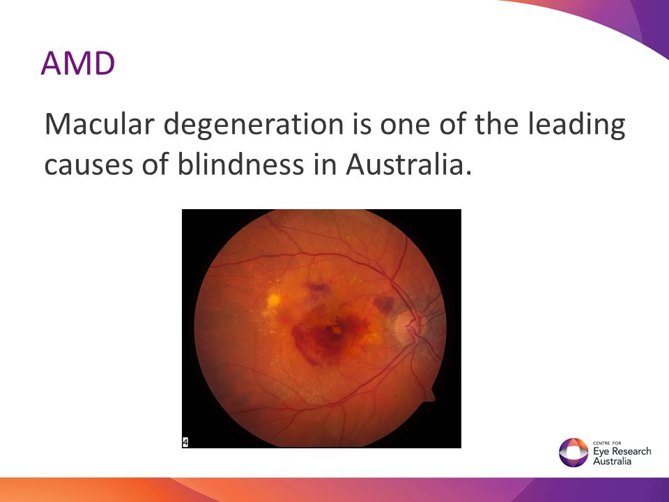 AMD Macular degeneration is one of the leading causes of blindness in Australia.