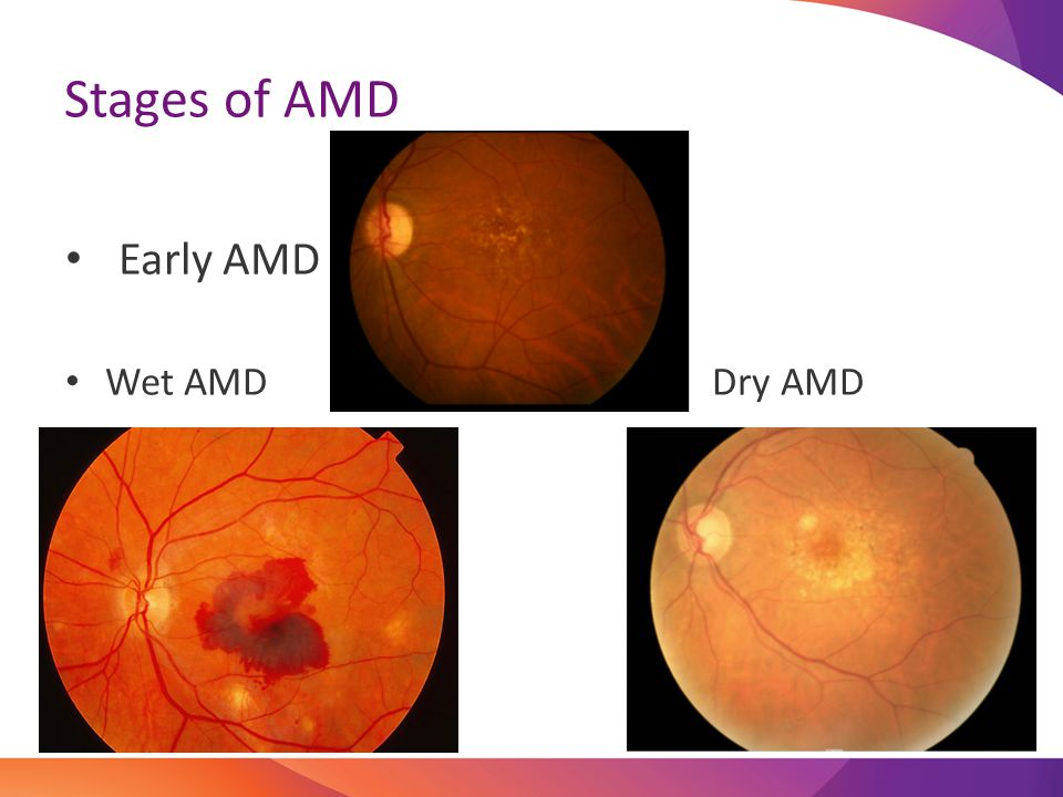 Stages of AMD Early AMD Wet AMD Dry AMD