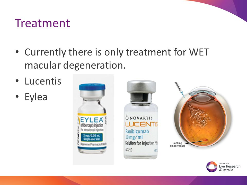 Treatment Currently there is only treatment for WET macular degeneration. Lucentis Eylea