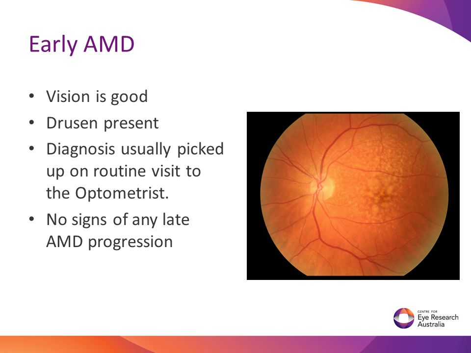 Early AMD Vision is good Drusen present
