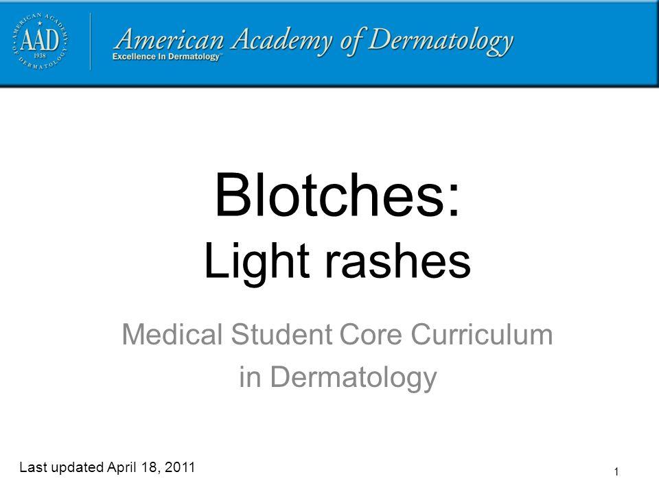 Blotches: Light rashes