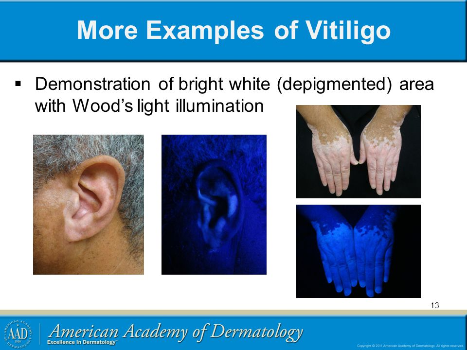 More Examples of Vitiligo