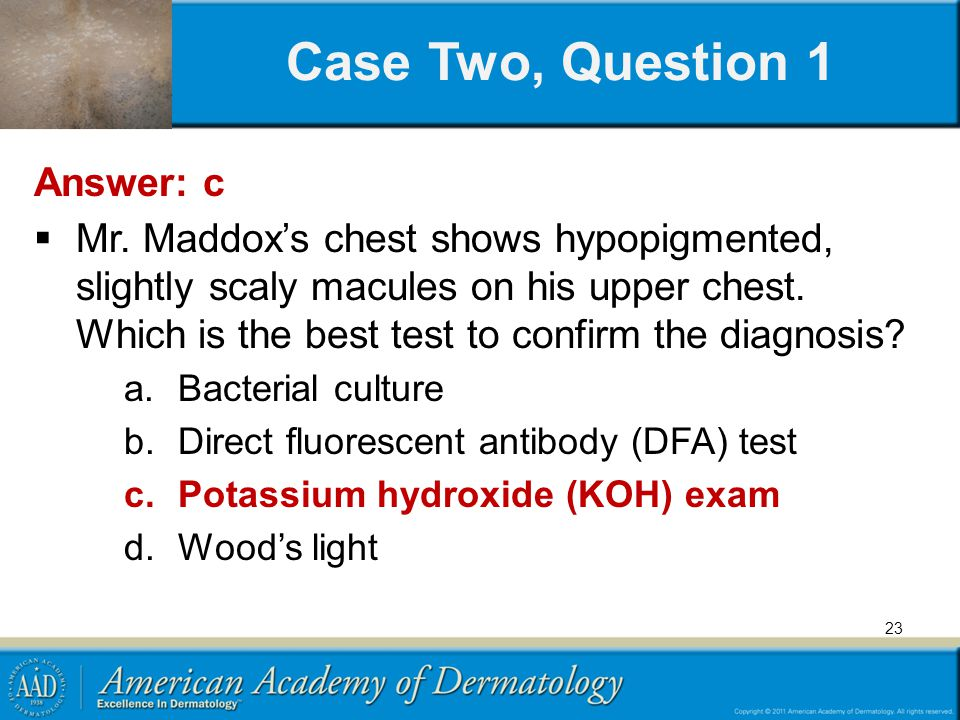 Case Two, Question 1 Answer: c